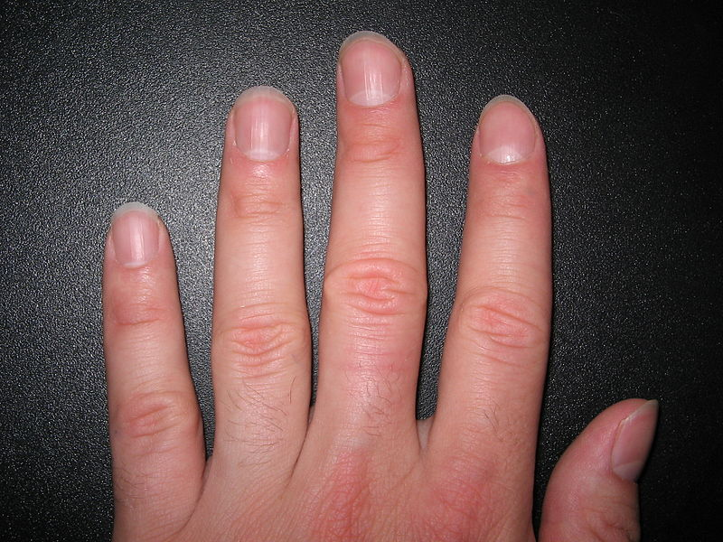 800px-Fingernails2 wikipedia