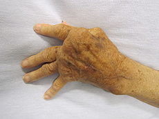 Arthritis Rheumatoid 230px-Rheumatoid_Arthritis WIKIPEDIA